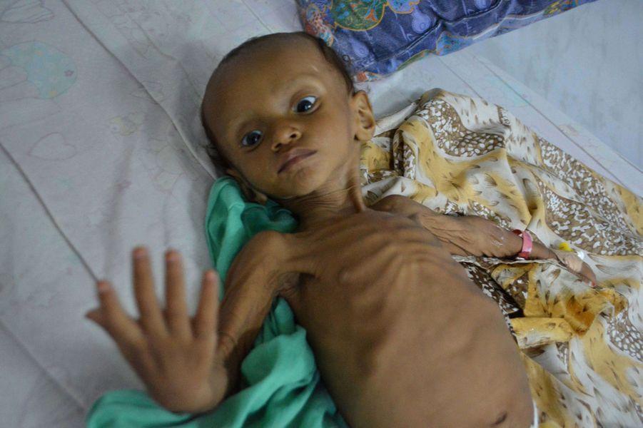 Un garçonnet yéménite malnutri photographié dans un hôpital deSanaa, le 9 septembre 2016.