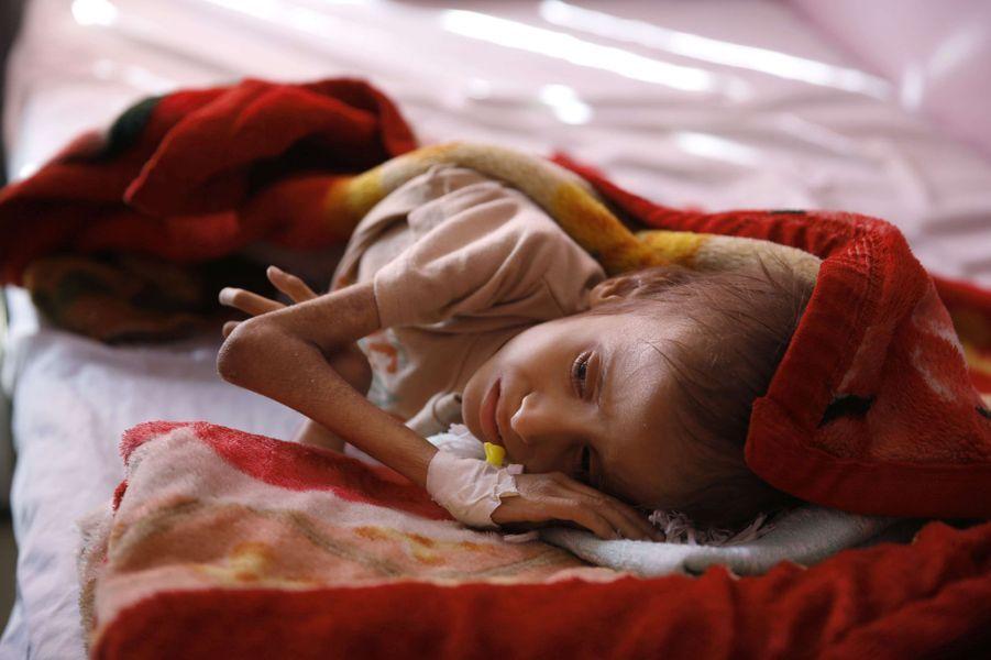 Un enfant yéménite malnutri photographié dans un hôpital deSanaa, le 24 janvier 2016.