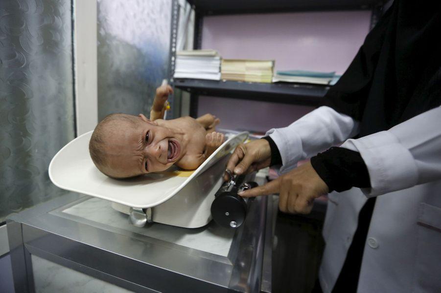 Une fillette yéménite malnutrie photographiée dans un hôpital deSanaa, le 10 février 2016.