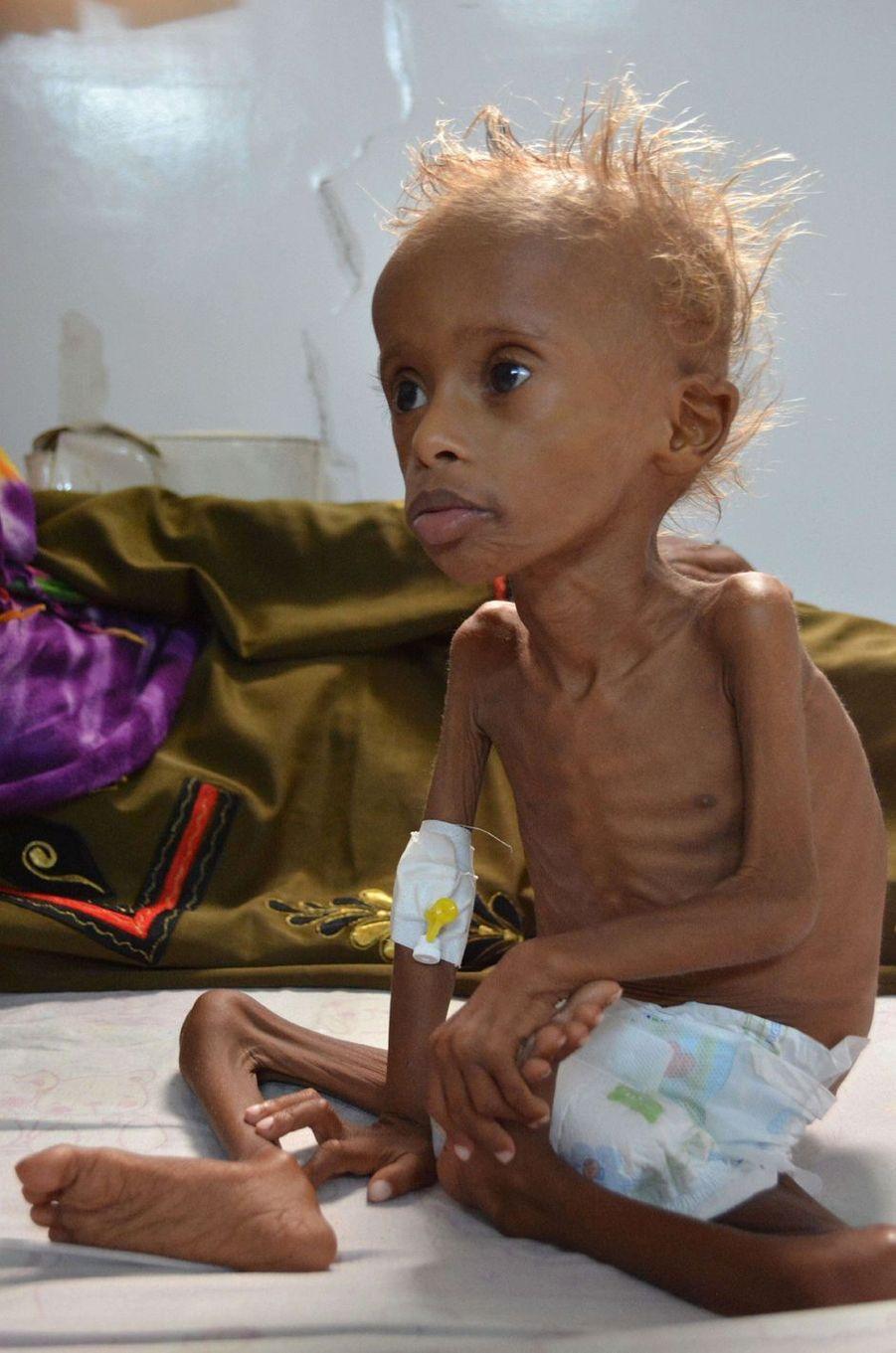 Salem, 5 ans, photographié à Sanaa, le 9 septembre 2016.