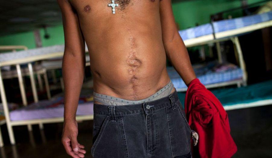 «Douglas en est à son troisième et plus long séjour dans le centre. Son abdomen porte les traces de la violence de la rue: un jour, un homme lui a tiré dessus avec un pistolet artisanal dont les munitions étaient des clous et des vis. Sa mère et sa fille de 15 ans, qui viennent parfois lui rendre visite, sont, dit-il sa seule motivation pour s'en sortir.»