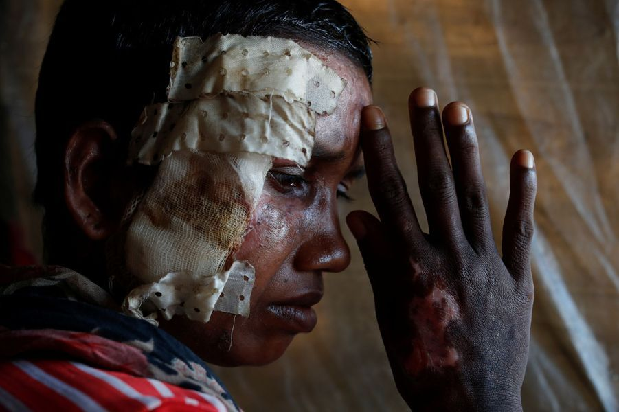 Rohingya brûlé au Bangladesh le 14 octobre 2017