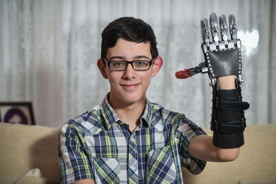 Joe et sa nouvelle main fabriquée grâce à une imprimante 3D