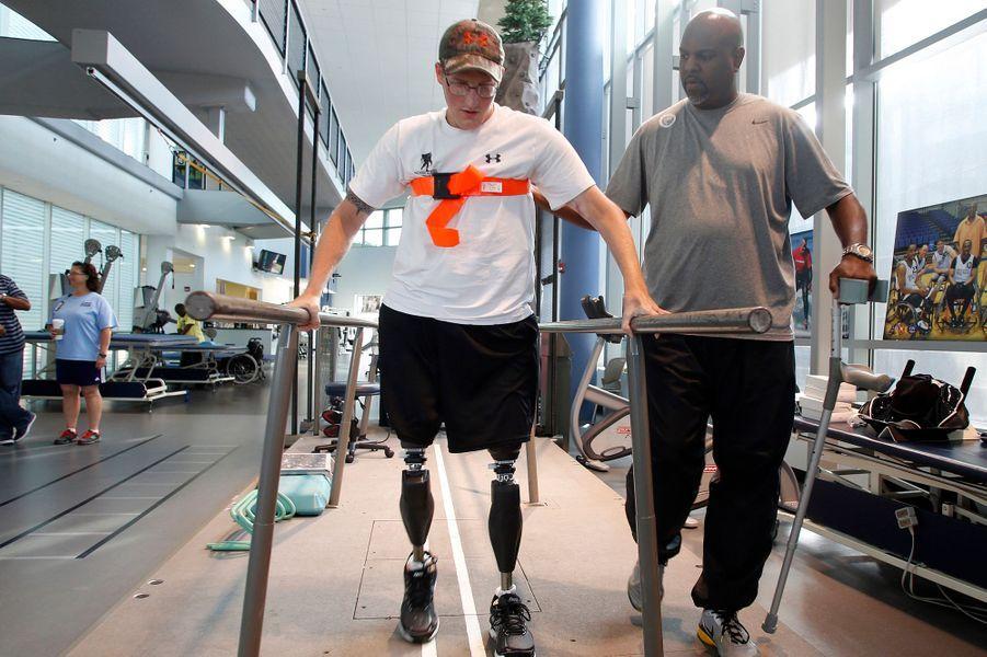 Une longue rééducation est nécessaire pour réapprendre à marcher avec des jambes artificielles.