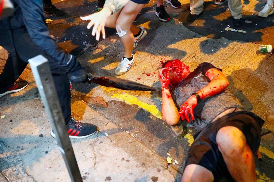 Le visage ensanglanté, l'homme se retrouve à terre.