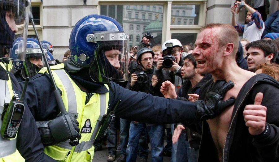 Manifestant blessé