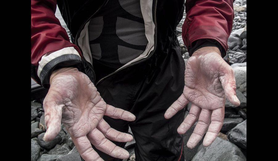 Les mains martyrisées de Vincent au bout de quarante-deux jours de navigation.