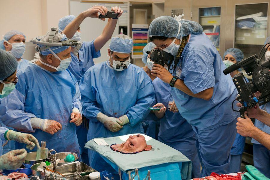 Les chirurgiens lors de l'opération de la greffe du visage de Katie Stubblefield.