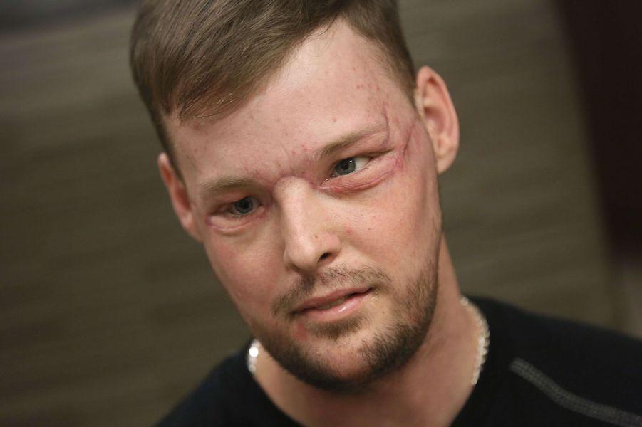Andy Sandness huit mois après sa greffe de visage, en février 2017.