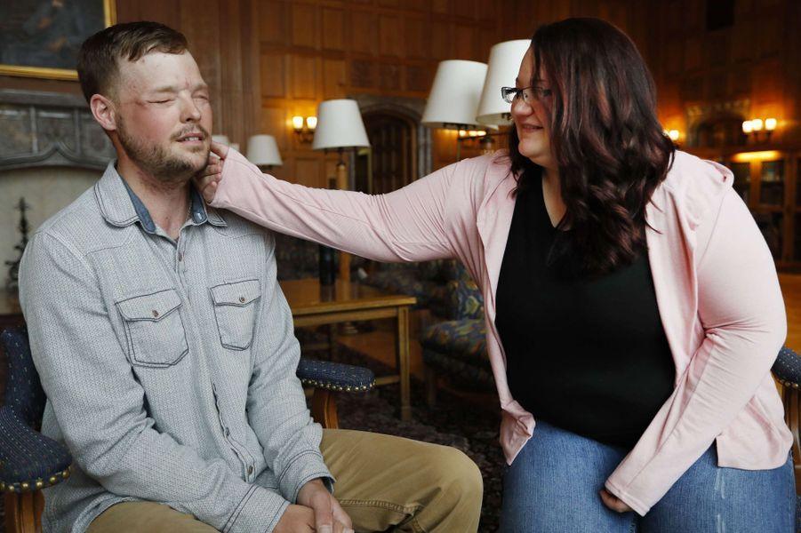 La rencontre entre Andy Sandness et Lilly Ross, la veuve du donneur de son visage, le 27 octobre 2017.