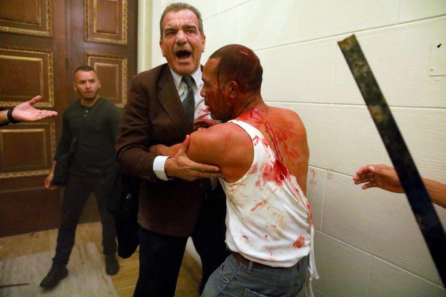 Cinq députés ont été blessés au Parlement vénézuélien, le 5 juillet 2017.