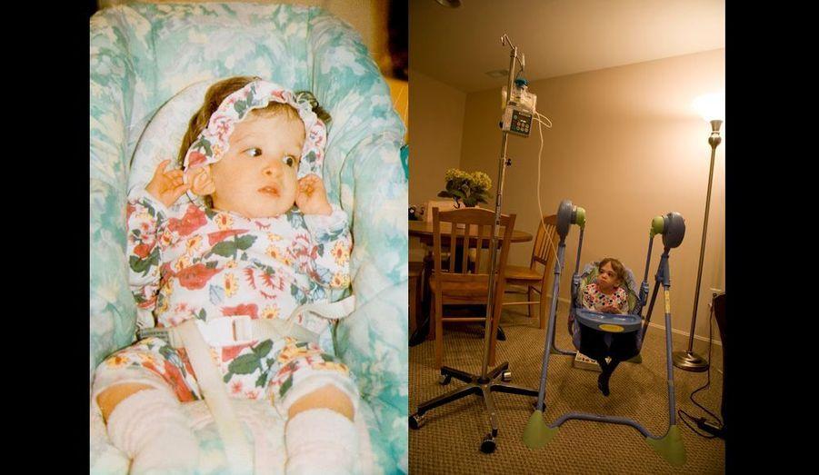 Elle a 3 ans quand elle est photographiée ici, sanglée dans son couffin (à g.) et elle a déjà cessé de grandir. Aujourd'hui (à dr.), dans son siège à bascule, dont le pied est calé par un livre pour éviter qu'elle ne le renverse, Brooke n'a presque pas changé. Elle est nourrie chaque jour par perfusion, pendant de longues heures.