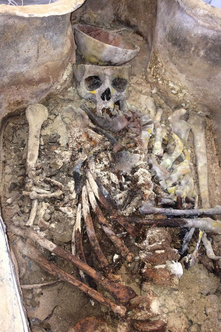 Squelette mis au jour après l'ouverture du premier sarcophage en plomb (locaux de l'Université de Caen).