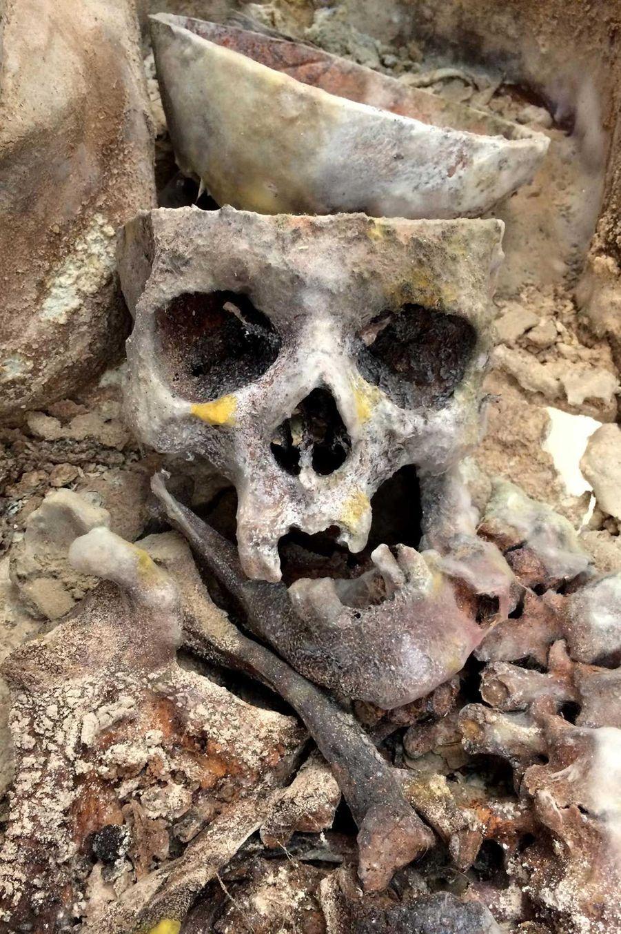 Vue de détail du crâne d'un des squelettes qui a été scié au moment du rituel funéraire, signe d'une pratique d'embaumement (locaux de l'Université de Caen).
