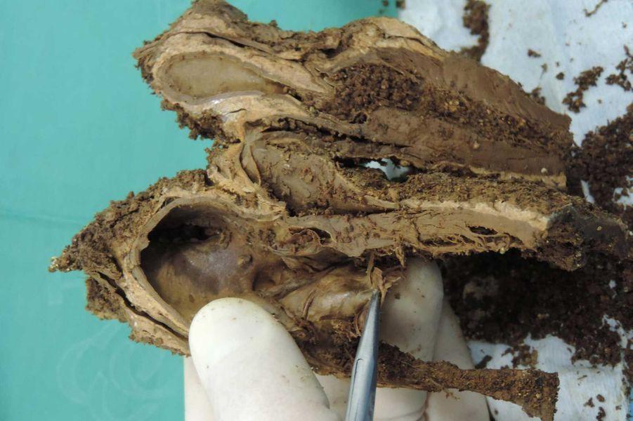 Coupe de l'organe pour l'observation des techniques d'embaumement et d'éventuelles pathologies.