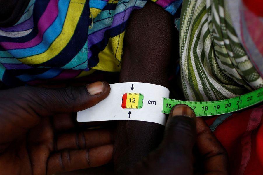 l'Unicef mesure les signes de malnutrition sur les enfants à Thonyor, état de Leer au Sud Soudan, le 25 février 2017