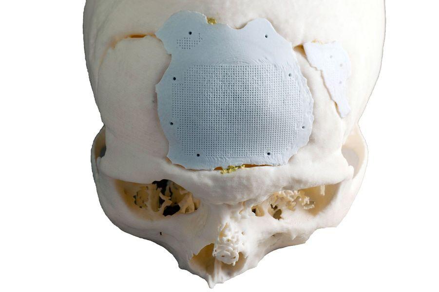 Implant crânien 3DCERAM/ CTTC LIMOGES