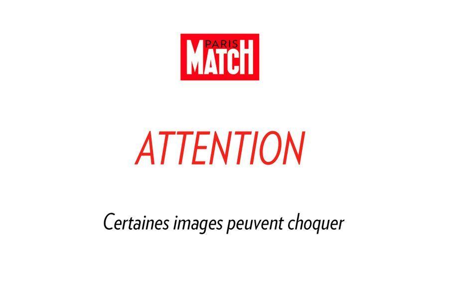 Attention Photos Choquantes