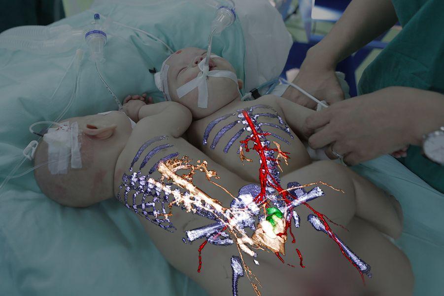 Le plan des parties du corps des bébés modélisé en 3D