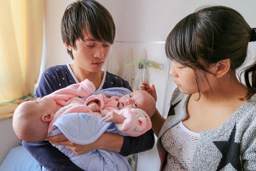 Yu Ce Yuan et Yu Ce Xiang, les bébés siamois surnommés James et Harley