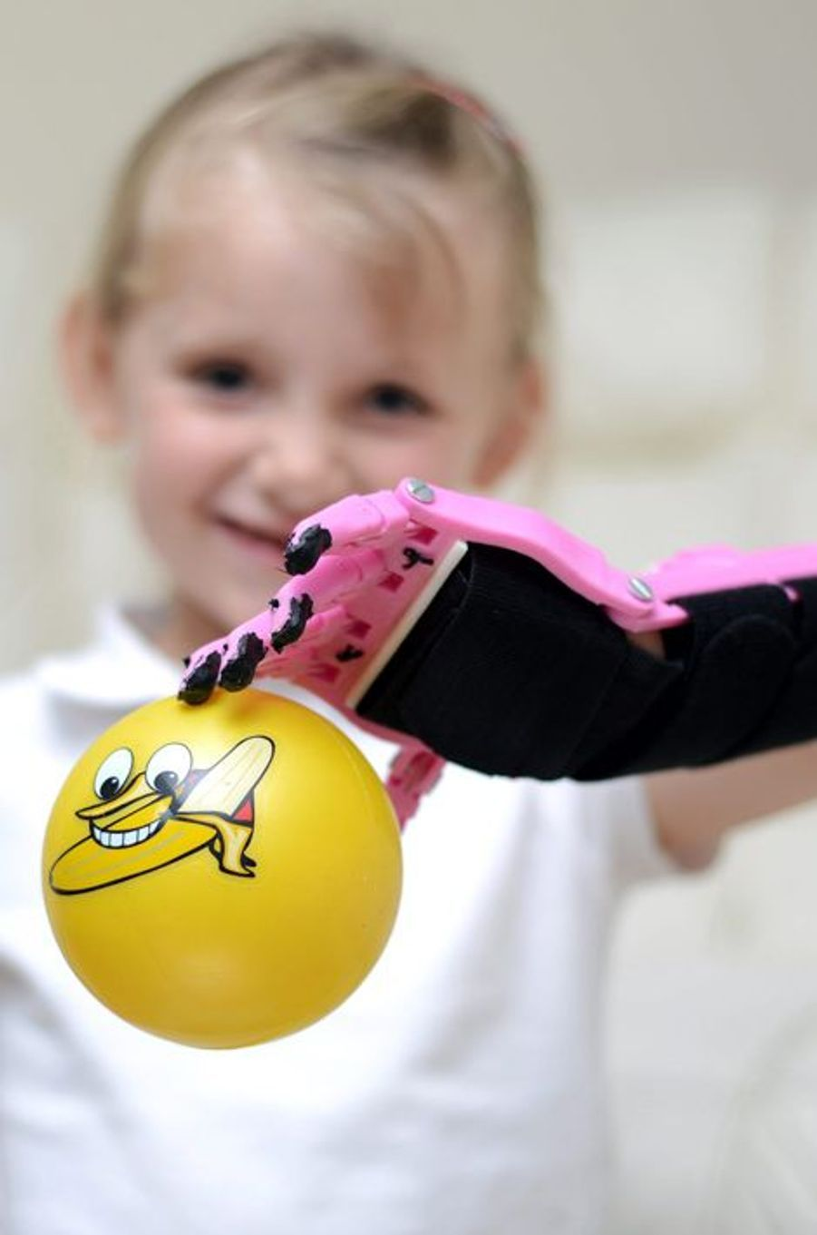 Haley, 5 ans, a bénéficié d'une main fabriquée grâce à une imprimante 3D