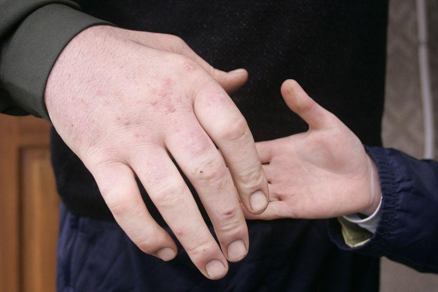 Les mains de Leonid Stadnyk mesuraient 31 centimètres