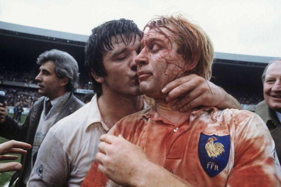 La France bat le Pays de Galles 16 à 9 JP Rives ensanglanté, Serge Blanco, le nez cassé.