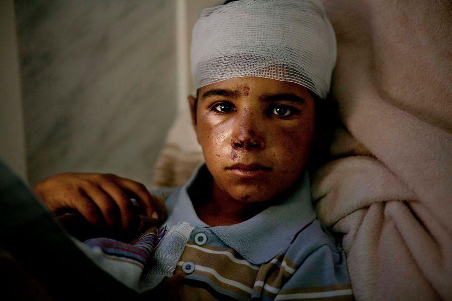 Chaher (11 ans) est entre la vie et la mort. Son frère et lui surveillaient leur troupeau quand ils ont été touchés par une frappe aérienne. Il faut lui retirer un éclat logé dans le cerveau, mais l'hôpital n'a ni chirurgien ni appareil d'IRM. Saada, octobre 2017.Visa d'or Paris Match News