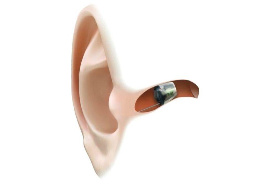 Appareils auditifs : immenses progrès