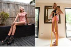 Caroline Arthur, en course pour les plus longues jambes du monde