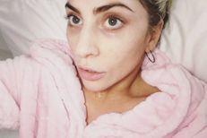 Les stars sans maquillage : Lady Gaga avant / après